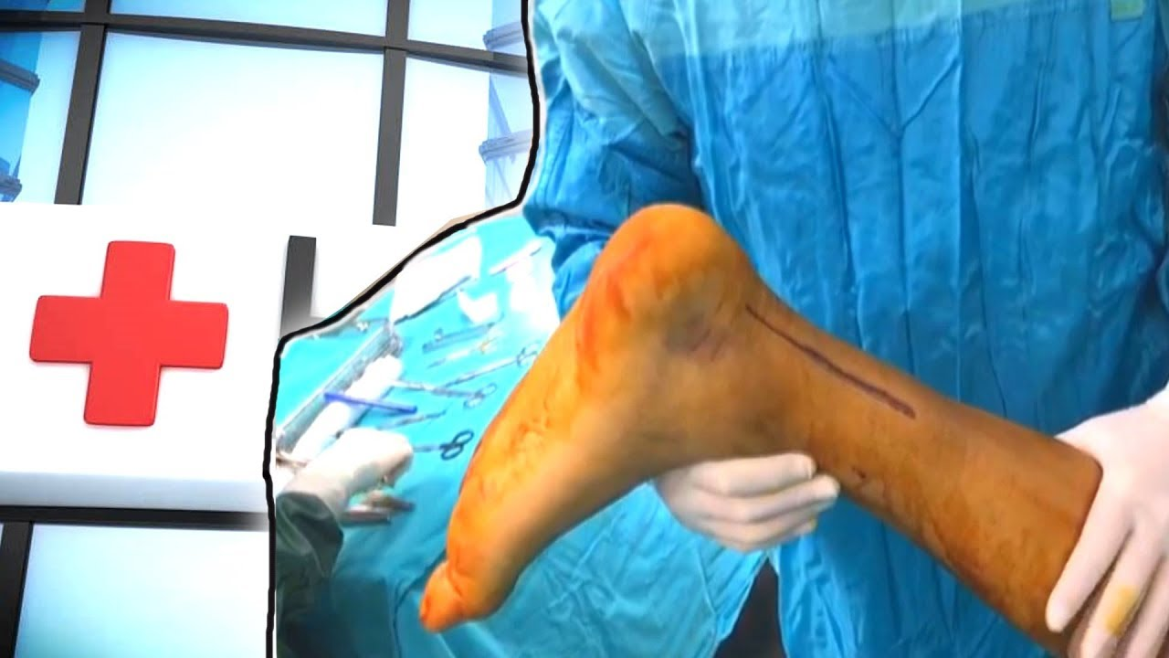 Achilles Tendon Injury  (Surgical Technique)