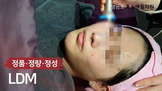 푸석푸석한 피부 관리 LDM 시술 영상 영등포 톡스앤필…