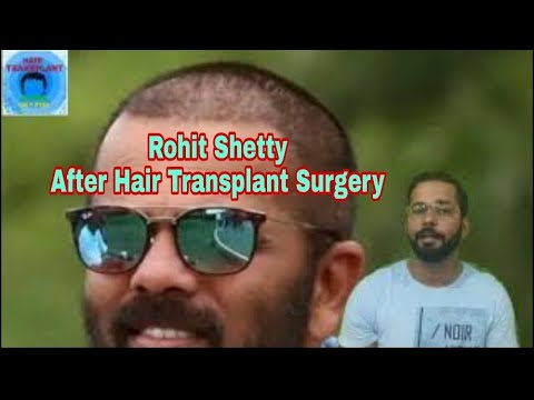 13 Month Best Hair Transplant Result 2019 OR Hair Transplant Fail from YouTube · Duration:  4 minutes 44 seconds