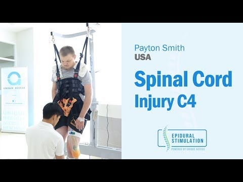 American C4 SCI Patient Payton is Back on His Feet After the Epidural Stimulation Surgery
