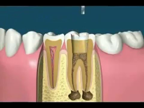 UK Dental Clinic, Root Canal Treatment & Tooth Cap