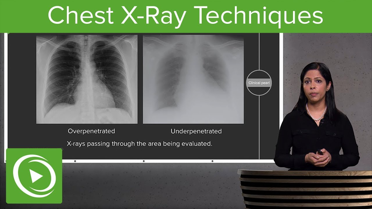Chest X-Ray Techniques: Inspiration, Penetration, Rotation – Radiology |  Lecturio