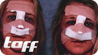 Beauty-Zwillinge durch viele Schönheitsoperationen | taff thumbnail