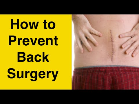 hqdefault - How Much Does Sciatica Surgery Cost