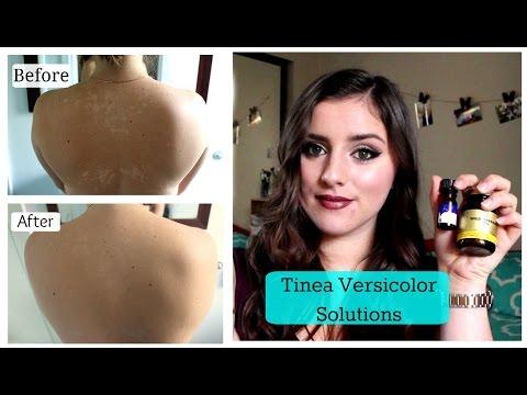 Tinea Versicolor, SOLUTIONS!!  TNBeauty94 - YouTube