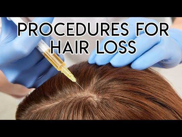 Procedures for Hair Loss