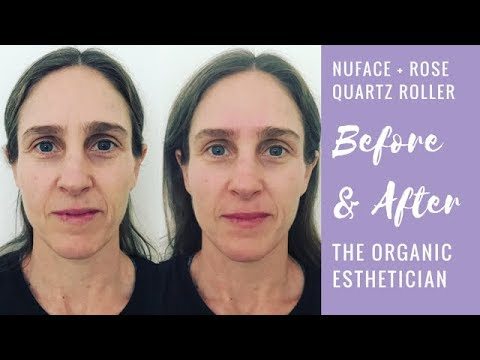 face roller before and after