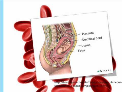 Umbilical cord stem cells banking - YouTube
