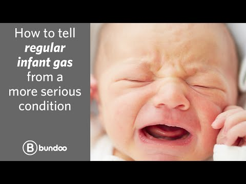 How to tell regular infant gas from a more serious condition