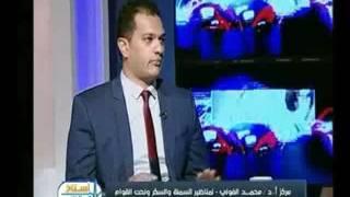برنامج استاذ في الطب   مع شيرين سيف النصر ود.محمد الفولي حول تقنية شفط الدهون-24-7-2017