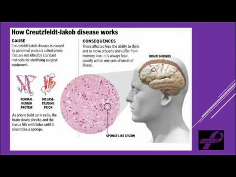 a research on the creutzfeldt jakob disease One of the diseases that has severely impacted the lives of people these days is creutzfeldt-jakob disease (cjd) which is a condition that.