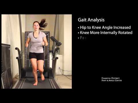 Gait Analysis for Flat Foot, Pronation and Supination San Francisco Triathlon Cycling