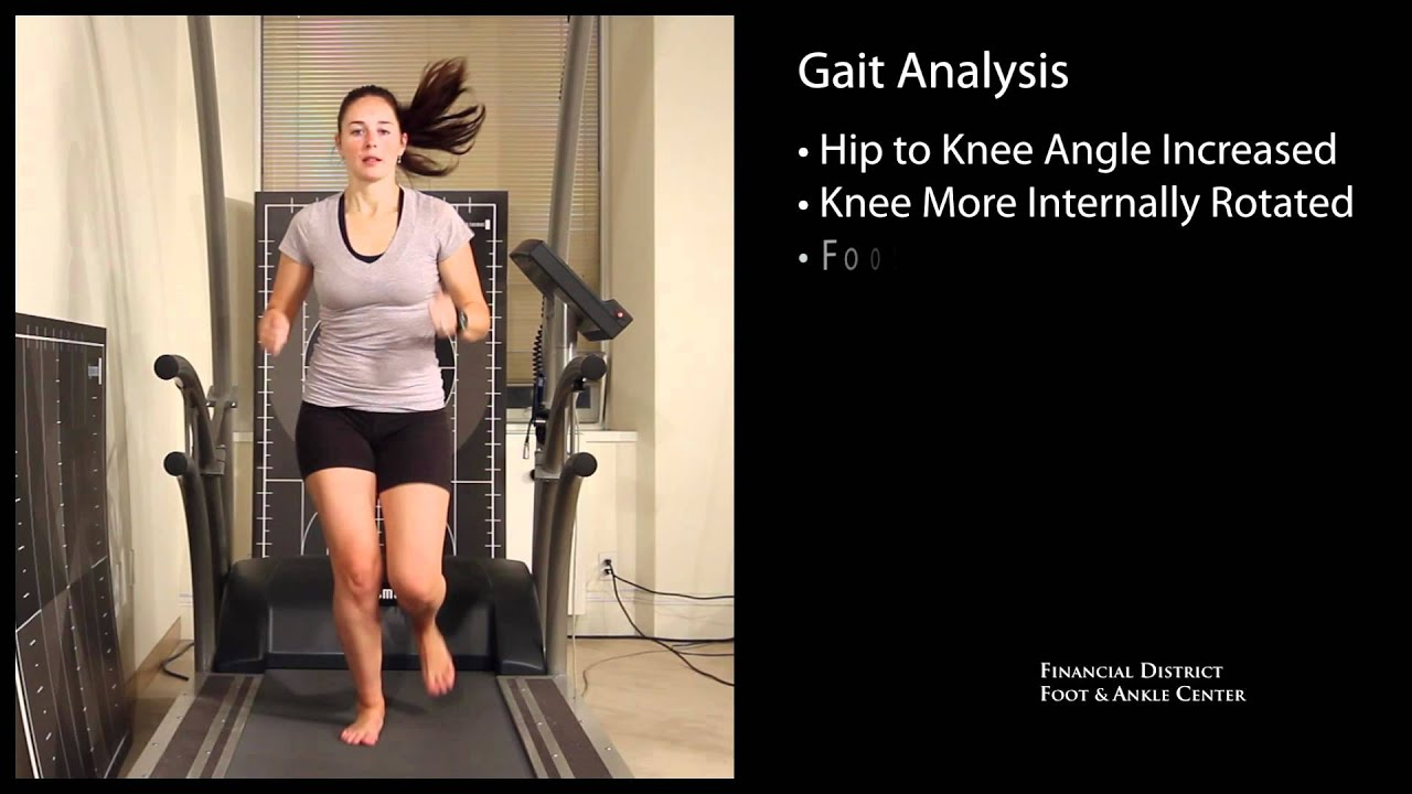 Gait Analysis for Flat Foot, Pronation and Supination - San ...