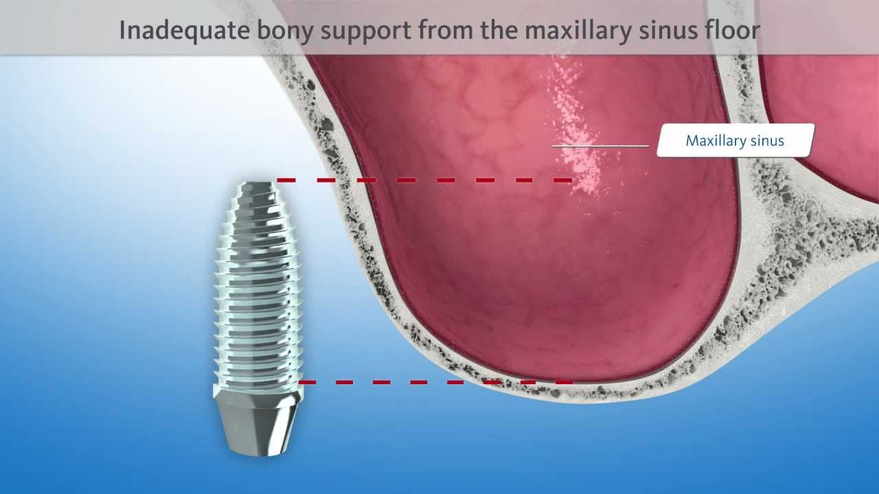 Sinus Floor Elevation Transcrestal : Dental animation sinus floor elevation geistlich d
