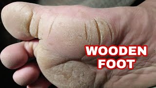 Wooden foot - Extreme Callus Growth
