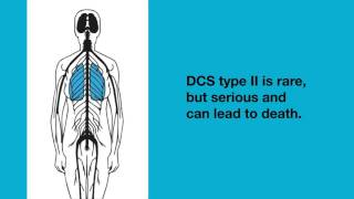 Creepy Facts About The Bends And Decompression Sickness