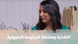 التغذية ومشكلة الجرثومة الحلزونية - د. ربى مشربش