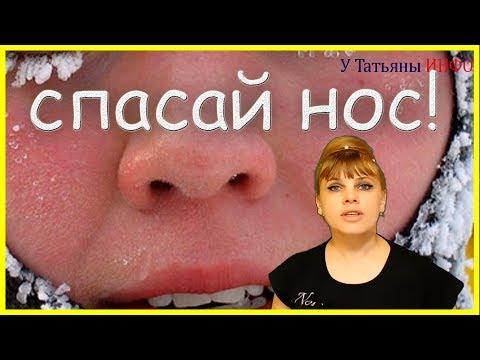 Покраснение носа: как избавиться?