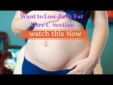 how-to-lose-belly-fat-after-c-section-#naturalremedies