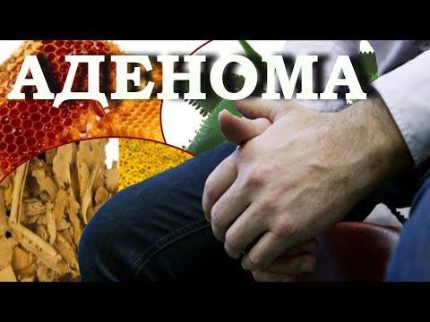 Аденома простаты у мужчин Лечение народными средствами