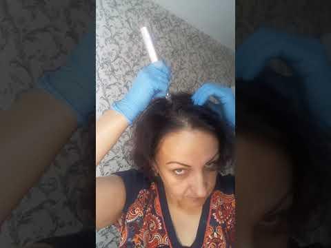Фракционная мезотерапия волос.