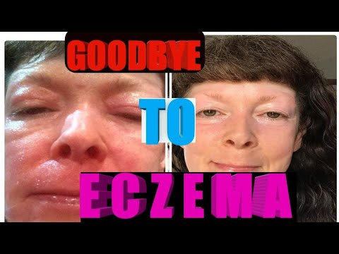 How To Treat Eczema Naturally : Top Home Remedies For Eczema (Pictures of Eczema)👲👲👲👲