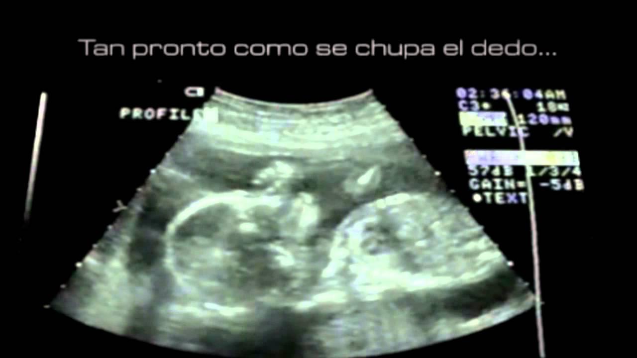 El Milagro De La Vida 25 De Marzo Día Del Niño Por
