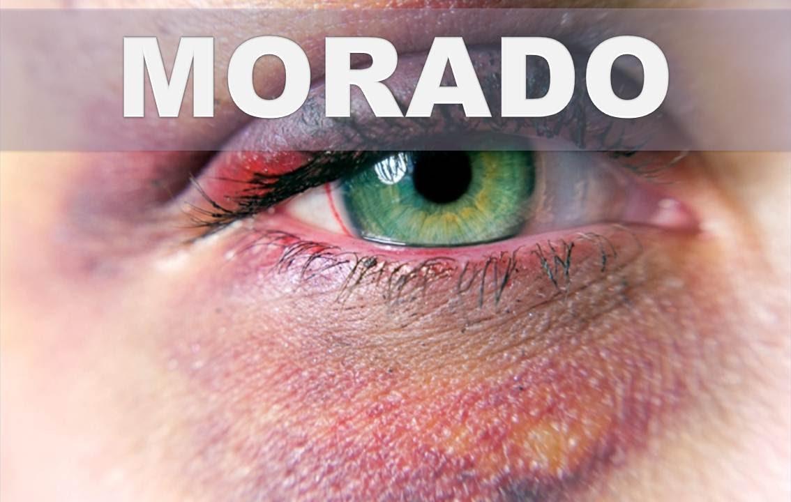 Como deshacerse de un ojo negro o morado en casa for Como se maquillan los ojos ahumados