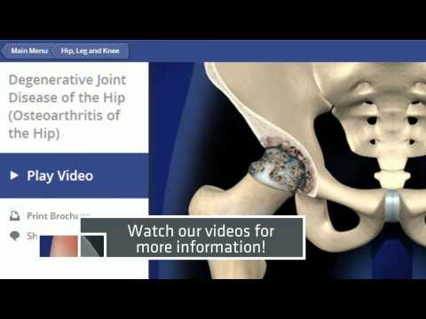 Degenerative Joint Disease (Hip Osteoarthritis) Tampa Pain Physicians