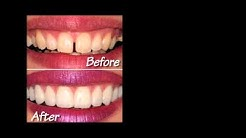 Orlando Cosmetic Dentist - Porcelain Veneers - Dr Paul Skomsky 407-374-2353
