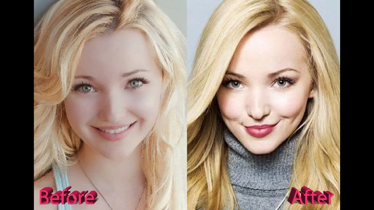 Dove Cameron Plastic Surgery Before and After Photos - YouTube