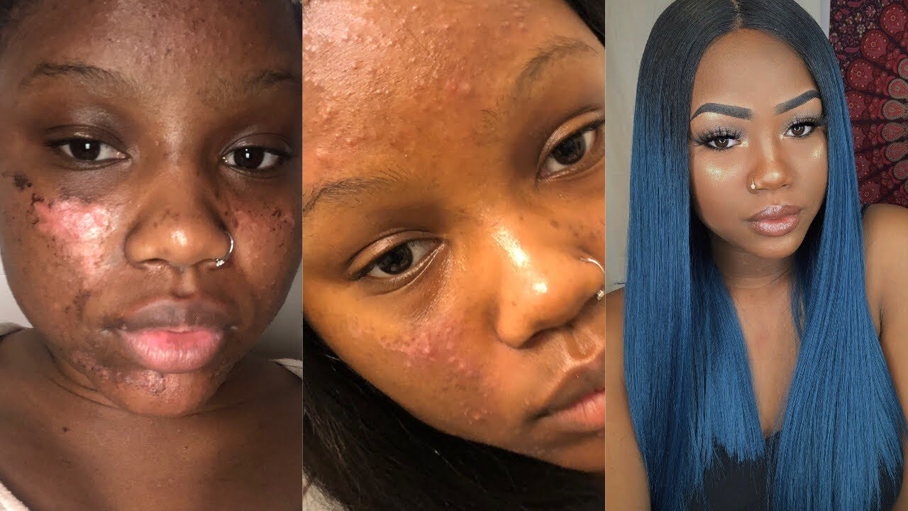 At Home Chemical Peel Gone Wrong I Got A Yeast Infection On My Face