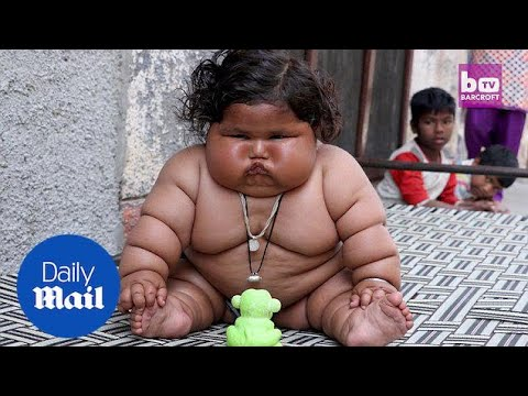 Giant Eight-month-old Baby Balloons To A Whopping 38lbs - Daily Mail