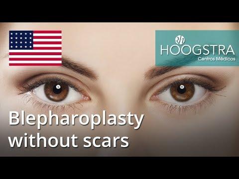Blepharoplasty without scars (18204)