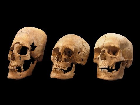Foreign Eggheads: Pointy-Skulled Women Were Immigrant Brides