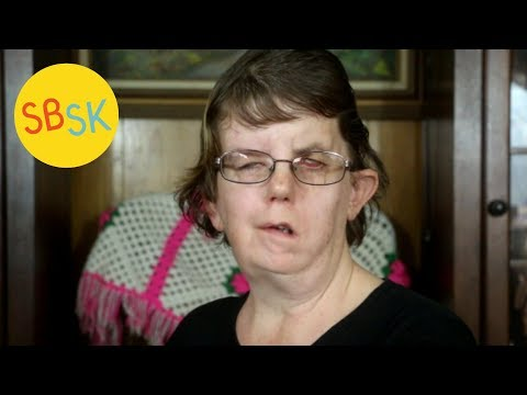 An Abortion Survivor's Story (Living with Facial Paralysis and Other Conditions)