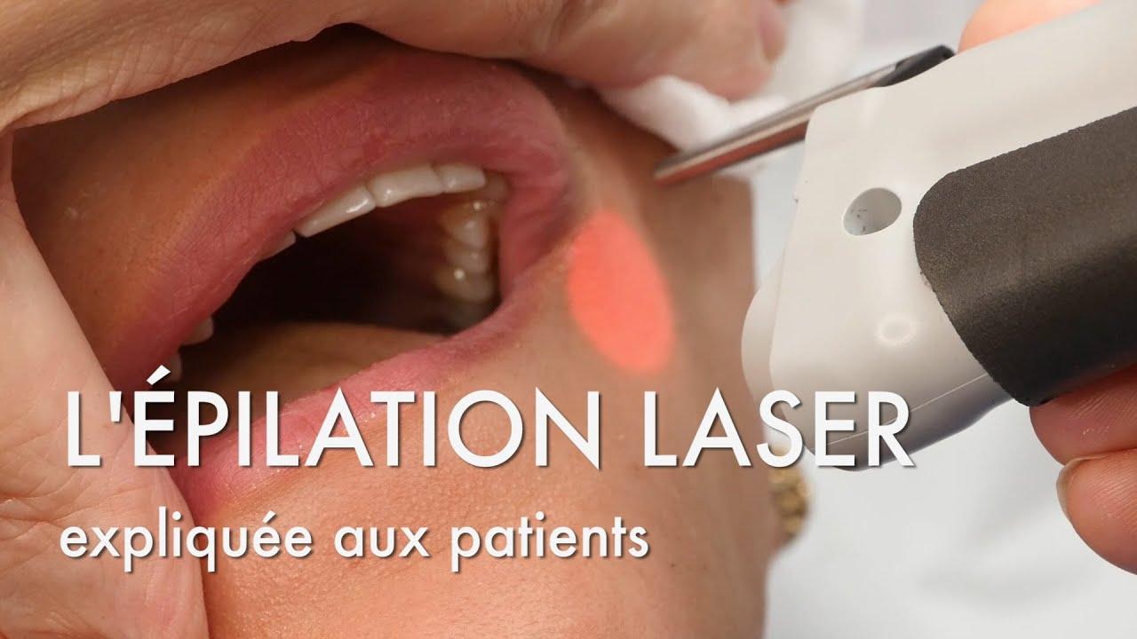 l 39 pilation laser expliqu e au patients centre marceau paris youtube. Black Bedroom Furniture Sets. Home Design Ideas