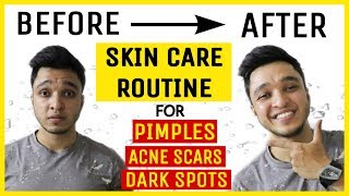 ULTIMATE Skin Care Routine for fighting Pimples, Acne Scars and Dark Spots   Nikhil Agrawal