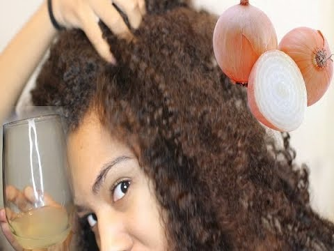 Kruzno opadanje kose kod zena