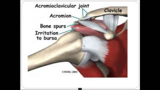 видео Анатомия мышц плеч