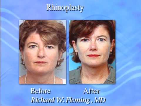 Guide To Rhinoplasty Plastic Surgery | EruptingMind