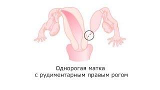 видео Аномалии развития яичников