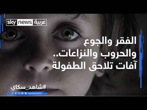 الفقر والجوع والحروب والنزاعات.. آفات تلاحق الطفولة  - نشر قبل 2 ساعة