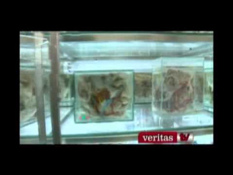 Lecciones de anatomía.flv - YouTube