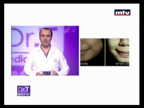Skin whitening Beirut Lebanon -  Dr T Medical Tips