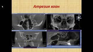Зубарева А.А. «Диагностика полости носа и околоносовых пазух по данным КЛКТ»