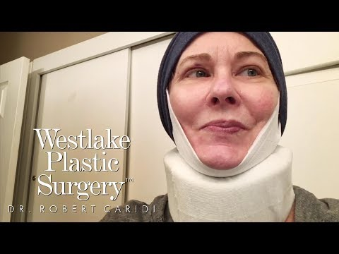 Facelift, Neck Lift And Blepharoplasty Eyelid Surgery Before and After