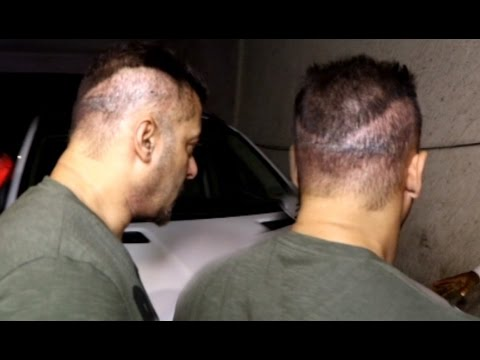 Salman Khan Hair Transplant Goes Wrong Youtube