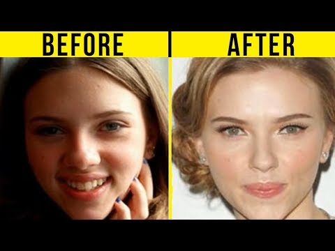 5 Best Celebrity Nose Jobs In Hollywood (Before And After)
