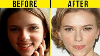 40 Celebrities Before And After Plastic Surgery Bella